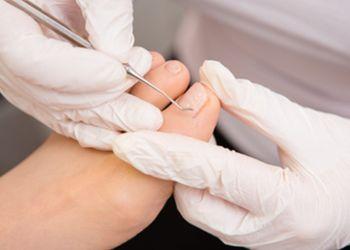 Santa Rosa podiatrist Dr. Deha Karaoglan, DPM