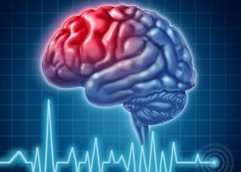 Reno neurologist Dr. Gerard L. Hershewe, DO