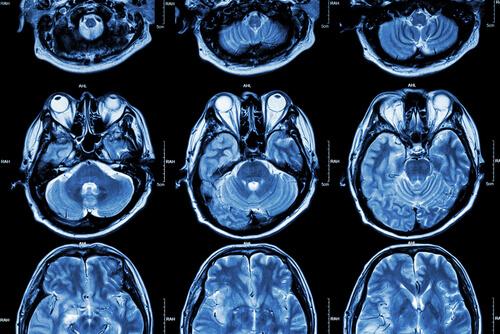 Evansville neurologist Dr. Roderick L Warren, MD