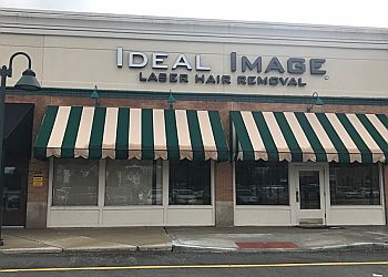 Indianapolis med spa Ideal Image Indianapolis