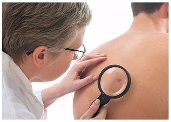 Fayetteville dermatologist Manfred Rothstein, MD